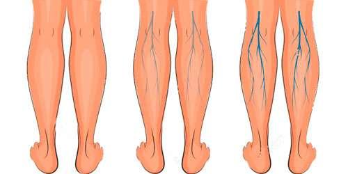 varizes-nas-pernas-1